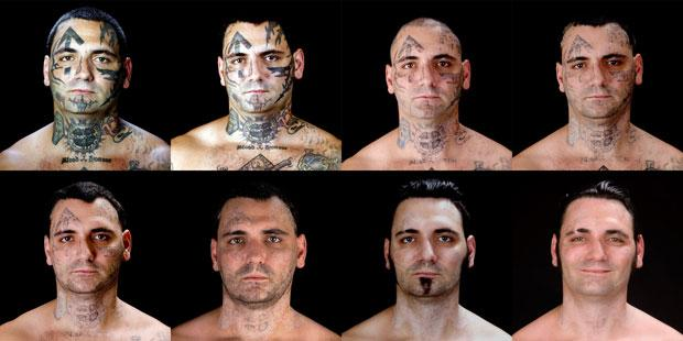Bryon Widner  removeu sua tatuagem 100%!